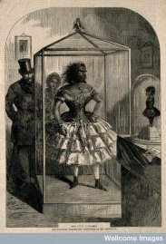 An 1862 engraving of the embalmed body of Julia Pastrana and her baby, who were exhibited together for years. (author FB page)